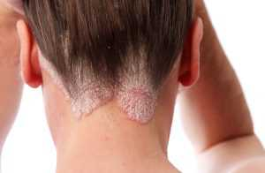 psoriasis-on-the-hairline-and-on-the-scalp